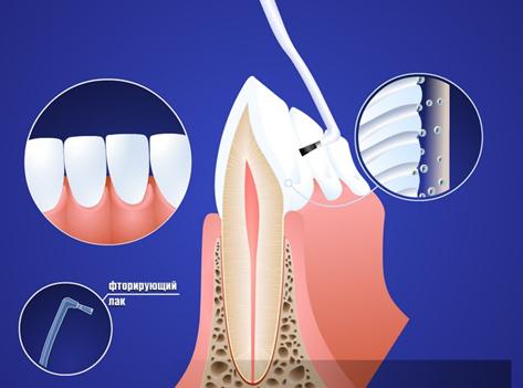 ftorirovanie_zubov
