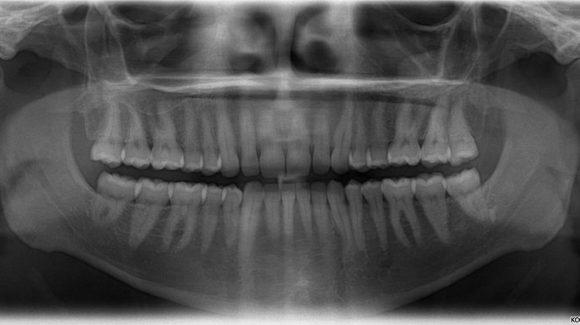 panormaniy_snimok_zubov