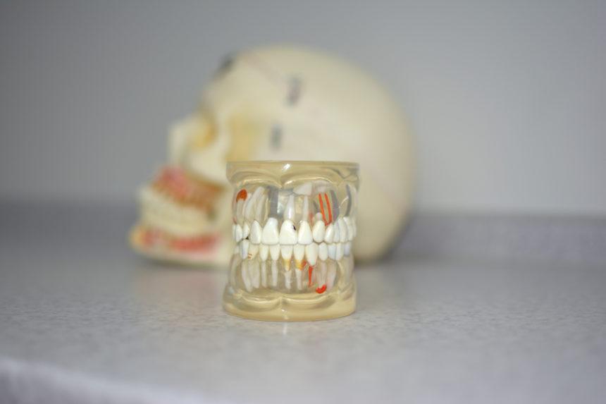 Рентгенодиагностика в стоматологии