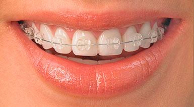 vyravnivanie-zubov