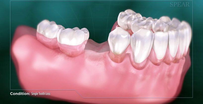 Часткова втрата бокових зубів на нижній щелепі